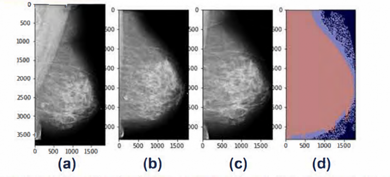 chart of four different mammograms of one patient